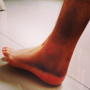 Ankle after my big Wiffle Ball injury!